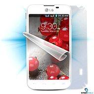 ScreenShield pro LG Optimus L5 II Dual (E455) na celé tělo telefonu