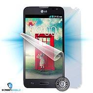 ScreenShield pro LG F60 (D390n) na celé tělo telefonu